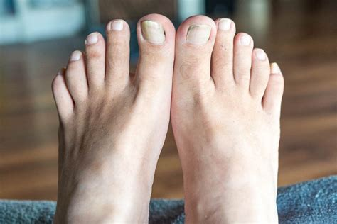 Wackel-mit-den-Zehen-Tag - Wiggle Your Toes Day in den USA