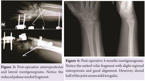 Comminuted Distal Radial Fracture with Large Rotated